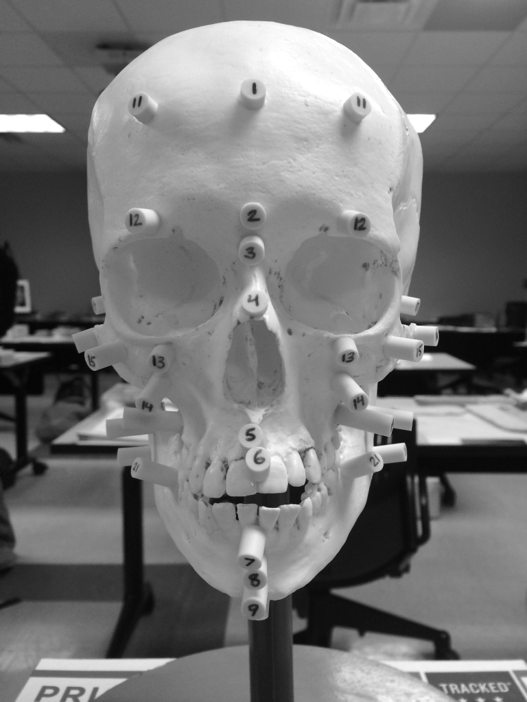 Cast of a skull with tissue depth markers glued to the appropriate locations. The markers are numbered to correspond to their location.
