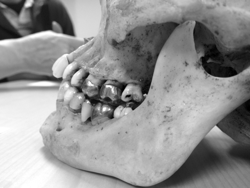 Close-up of teeth on a real skull. Some of them have metal caps. Some are decayed.