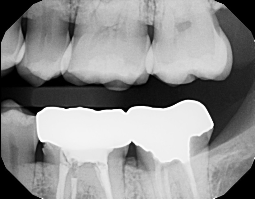 dental x-ray showing the top teeth biting down on the bottom ones.